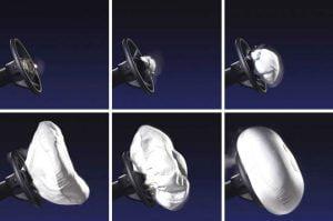 Lampu Indikator Airbag Menyala